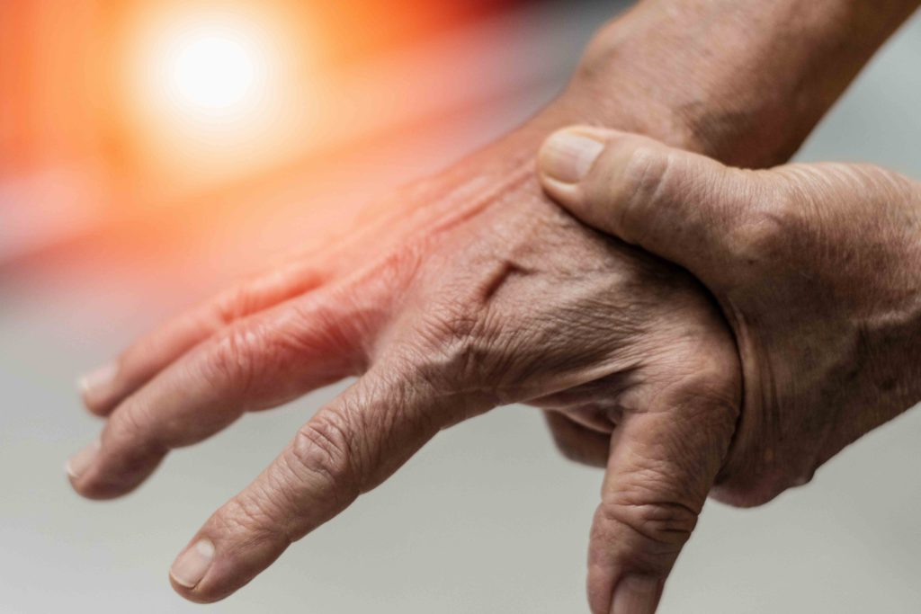 early signs and symptoms of arthritis